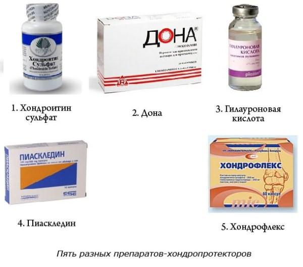 Лечение на периферен артрит