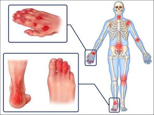 Алтернативно лечение на псориатичен артрит