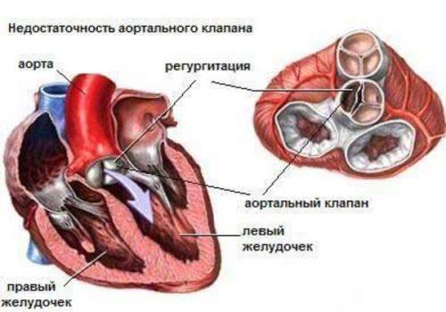 Кортикостероиди при болки в ставите