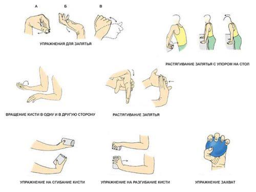 Терапия при ревматоиден артрит