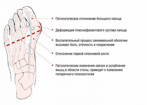 Кой лекар третира деформацията под формата на кост върху..