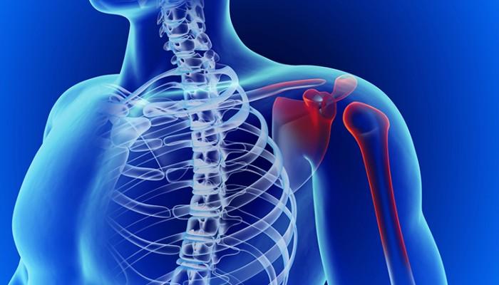 ᐉ Болки в рамото - кога може да са признак на болест — orientandoo.com