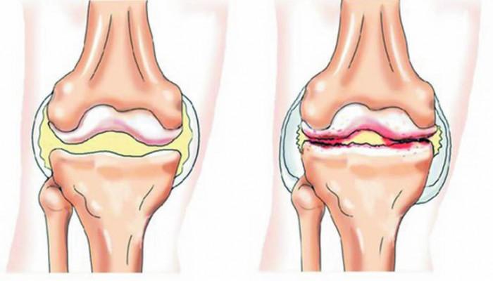 Коксартроза на колянната става