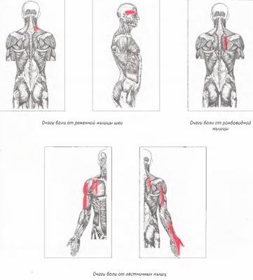 От болка в мускулите на врата и гърба - Болки в ставите