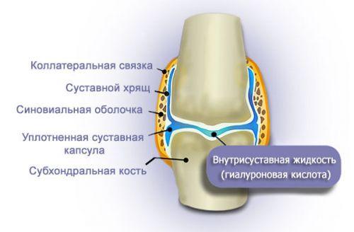 Хиалуронова киселина в коляното и продължаваща болка