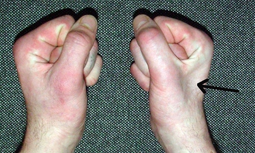 Прояви и лечение на системна склеродермия - Болки в ставите