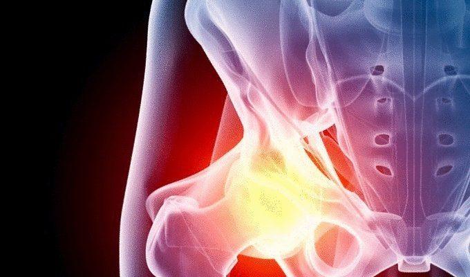 Упражнения за тазобедрените стави при болка и артрозни изменения