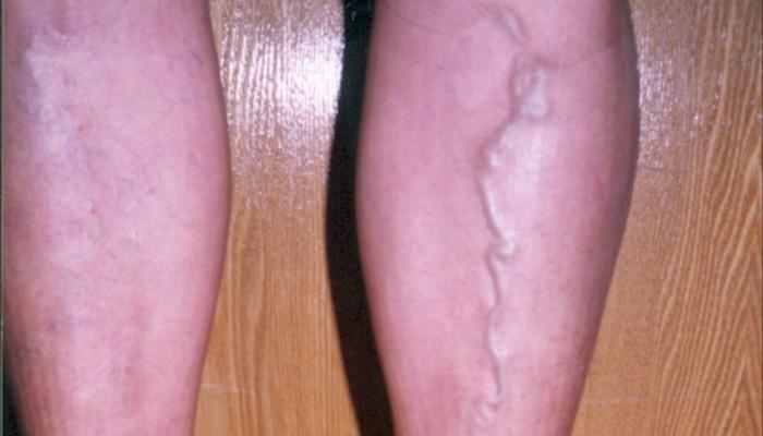 Причини за болка в мускулите на телетата - Болки в ставите