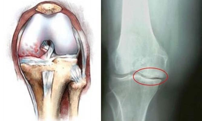 Болка в коляното : причини и лечение | Компетентно за здравето на Move&Flex