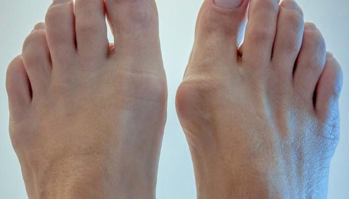 Конуси на палеца - Болки в ставите