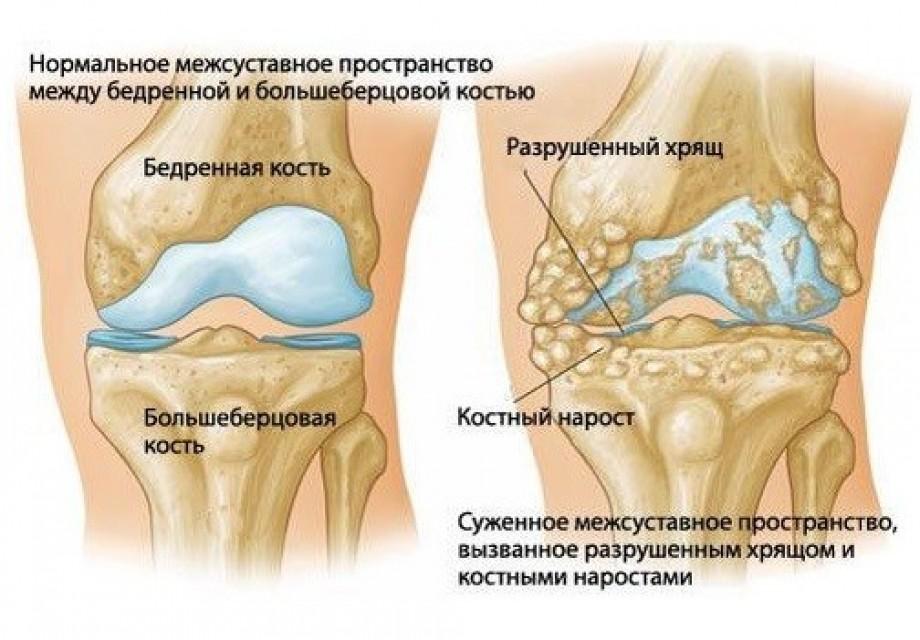 Симптоми и превенция на артрит