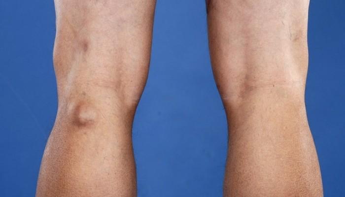 Болка в коляното при ходене | Компетентно за здравето на Move&Flex