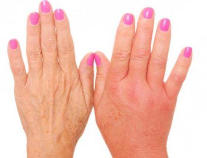 Инфекциозни артрити