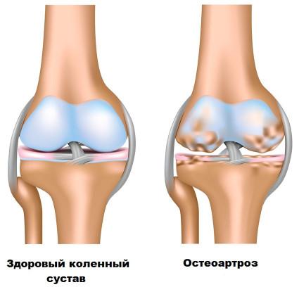 Лесни упражнения при болки в гърба и леки гръбначни изкривявания   Спорт orientandoo.com