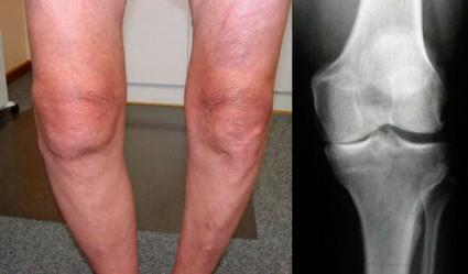 Гонартроза: лечение на заболяване на коляното - Болки в..