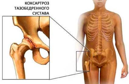 Диспластична коксартроза и методи за нейното лечение | Болки в ставите