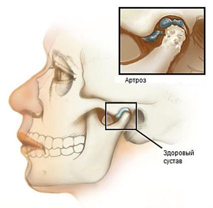 Остеоартрит на челюстта: симптоми и лечение на челюстната става