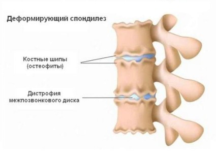 Какво представлява заболяването гон артроза и как се лекува