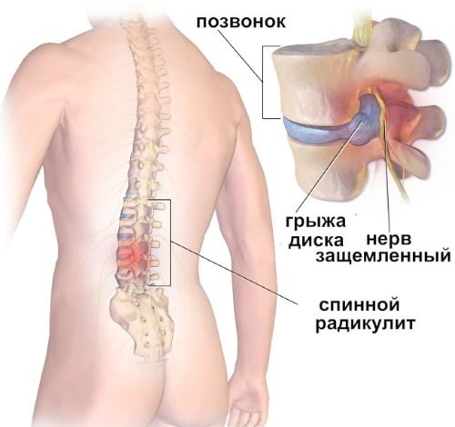 Как да открием и излекуваме артрита на раменната става навреме? | Болки в ставите