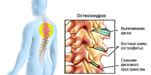 Стелки за премахване на болки в ставите