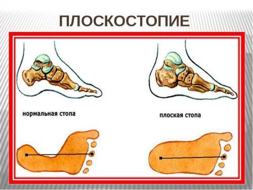 Методи за предпазване от плоски крака при деца - Болки в..