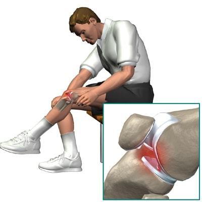 Болка в коляното при изкачване на стълби