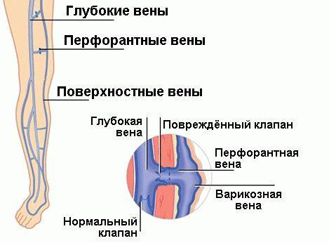 Перфорирани вени - Болки в ставите
