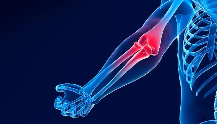 Протягане и разкъсване на сухожилията на лактите: симптоми..