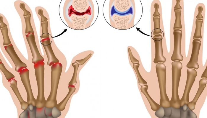 Болка и подуване на ставите на пръстите: методите на..