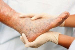 Оток и тежест в краката - Болки в ставите