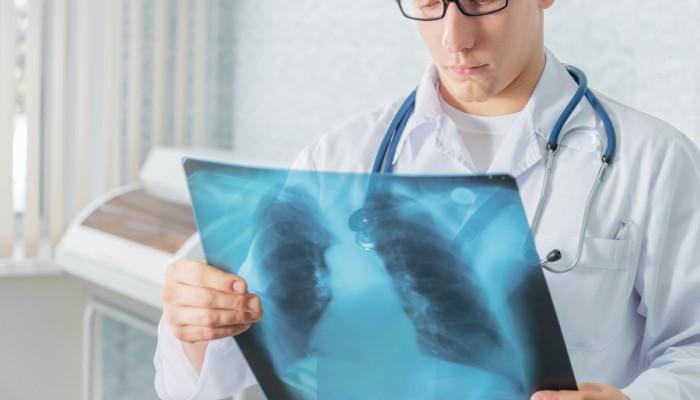 Причини за болка в гърдите и гърба - Болки в ставите