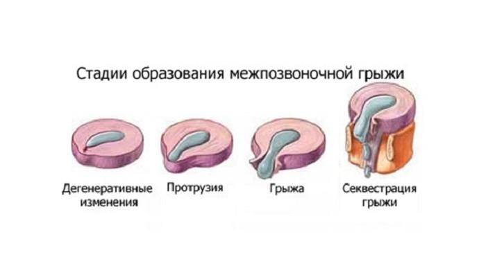 Лечение на Ингвинална херния без операция | Лечение на Херния