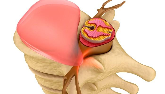 Аксиална херния на хранопровода: симптоми, степени, лечение | Компетентно за здравето на Move&Flex