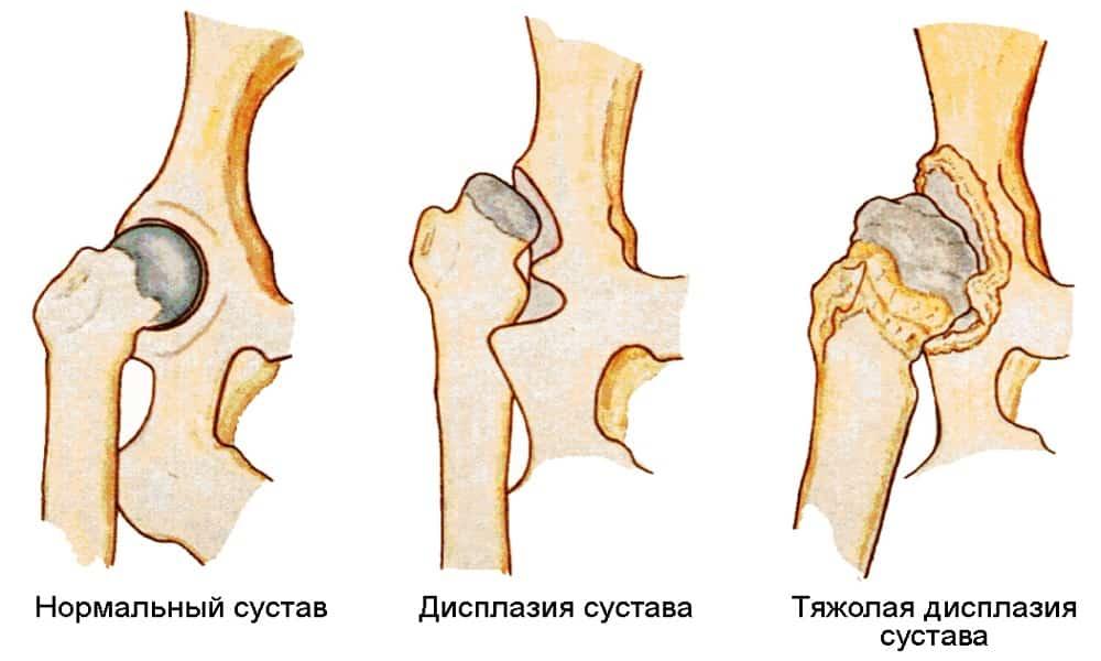 Степени коксартроза на рентгене