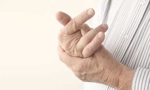 Домашни мехлеми за артрит