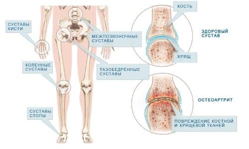 Домашни средства за лечение на артрит | orientandoo.com