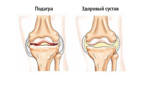 Лечение на ревматизъм и ревматоиден артрит с Аюрведа