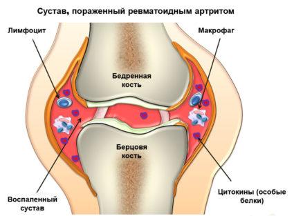 Болки в ставите на краката лечение с билки