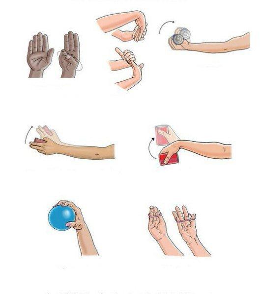 Лечение на ръката с тендовагинит на сухожилията - Болки в..