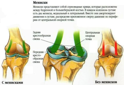 Диагностика и лечение на киста на менискуса на коляното..
