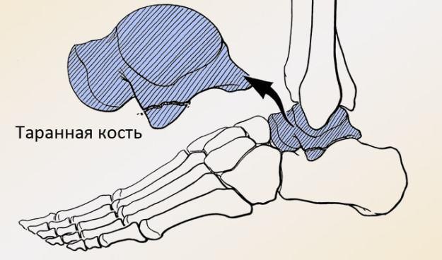 Фибромиалгия – необяснимите мускулни и ставни болки | Move&Flex