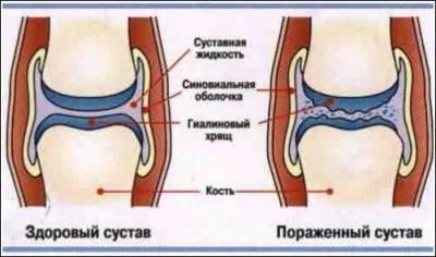 Костно-ставни заболявания « Ganoderma (рейши) - резултати България