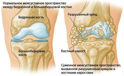 Инжектиране на хиалуронова киселина в коляното   Болки в ставите