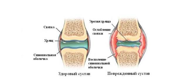 Ревматоиден артрит моноклонални антитела