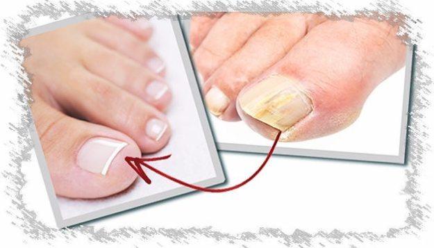 Салицилов мехлем за гъбични лезии - Болки в ставите