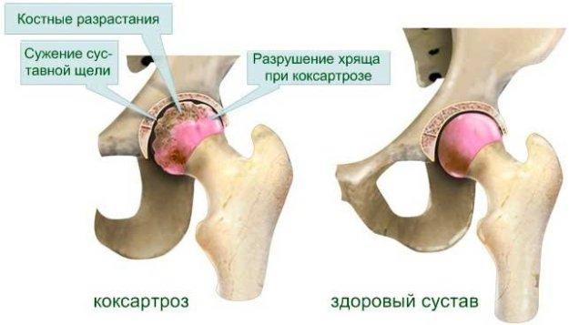 Как да се лекува хематом на крака след инсулт? | Болки в ставите