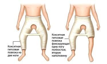 Болки в тазобедрените стави и кръста